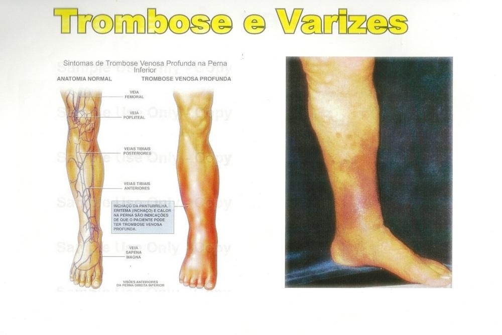 trombose e varizes